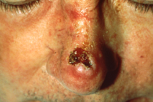 Difference Between Squamous Cell Carcinoma and Basal Cell Carcinoma