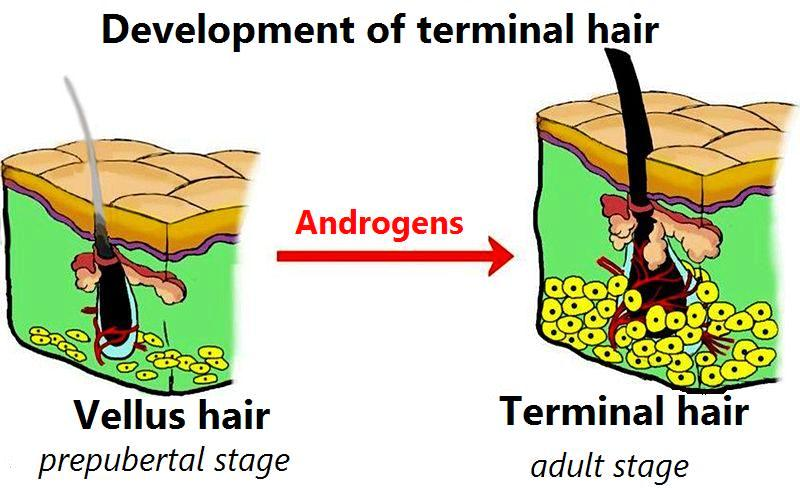Difference Between Terminal Hair and Vellus Hair