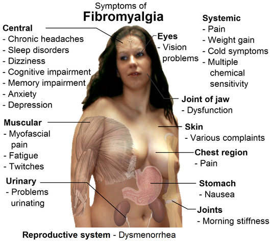 Difference Between Fibromyalgia and Arthritis