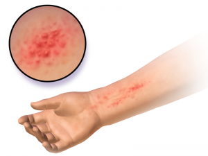 difference between allergic reaction and Anaphylaxis