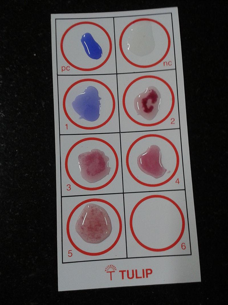 Serological Test