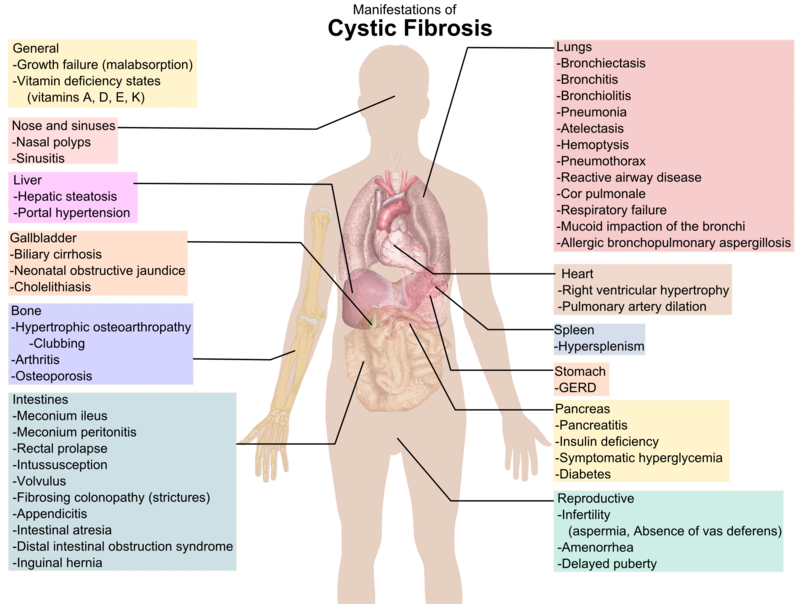 Difference Between Cystic Fibrosis And Pulmonary Fibrosis