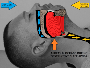 Difference Between Sleep Apnea and Snoring-sleep apena