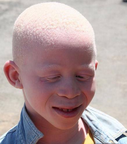 albinism vs vitiligo