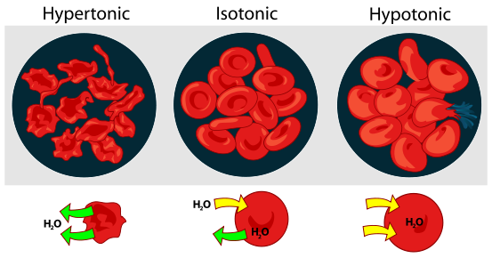 Difference Between Isotonic And Hypertonic Isotonic Vs