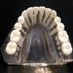 Maxillary vs Mandibular Molars