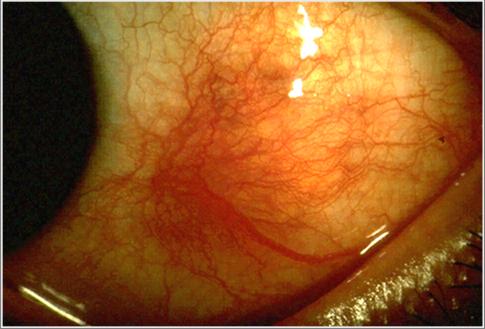 Key Difference - Scleritis vs Episcleritis
