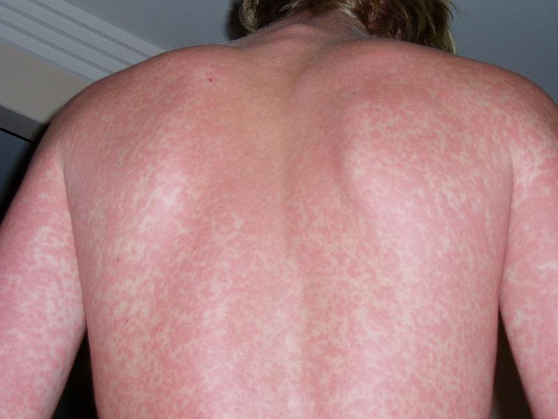 Trattamento di un laser di acne di clinica