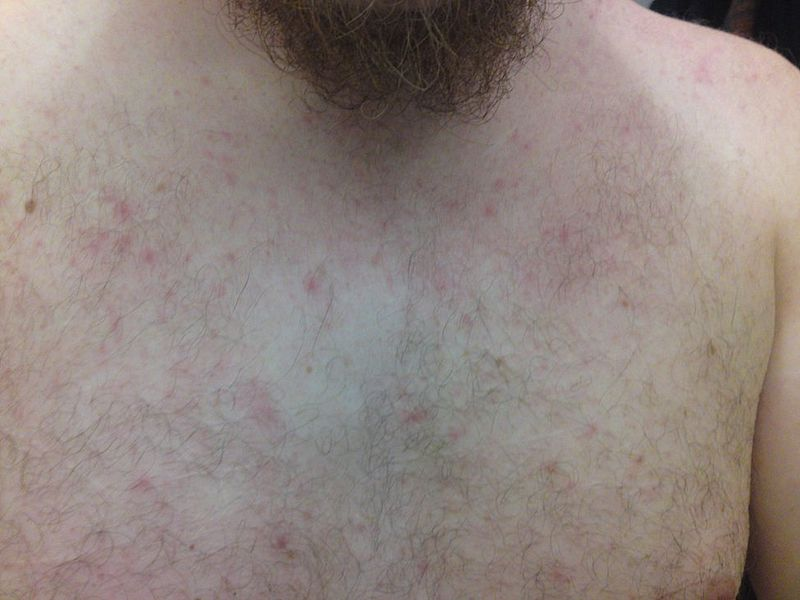 Key Difference - Heat Rash vs Allergic Reaction
