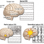 Difference Between Seizure and Epilepsy_EEG