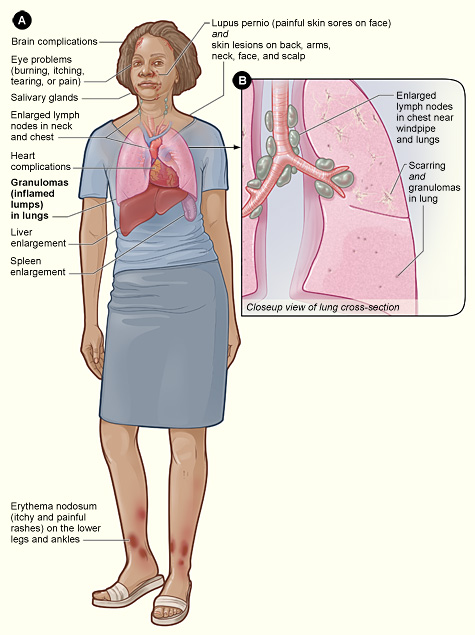 steroids suppress immune system
