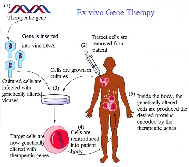 Difference Between Ex Vivo and In Vivo Gene Therapy