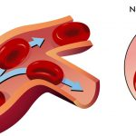 Difference Between Normal Hemoglobin and Sickle Cell Hemoglobin