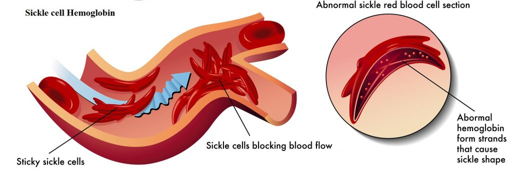 Key Difference - Normal Hemoglobin vs Sickle Cell Hemoglobin