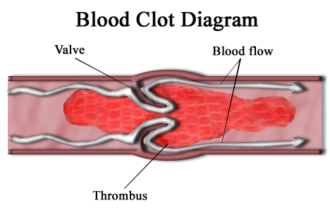 Key Difference - Blood Clot vs Aneurysm