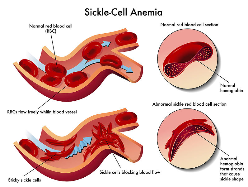 Difference Between Sickle Cell Anemia and Thalassemia