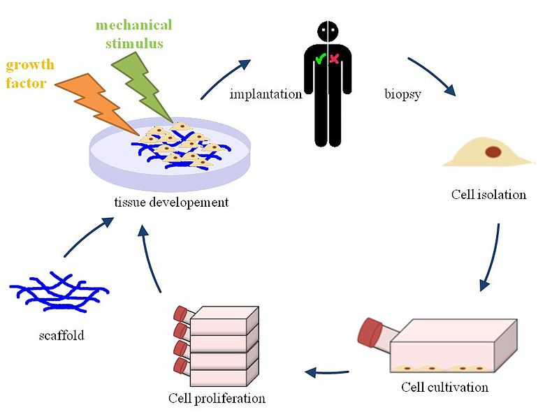 Difference Between Tissue Engineering and Regenerative Medicine