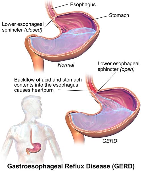 Key Difference - Bronchospasms vs Laryngospasms