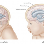 Difference Between Cerebral Edema and Hydrocephalus
