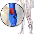 Difference Between DVT and PAD