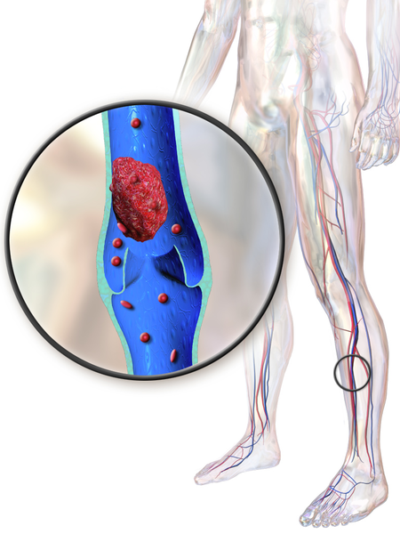 Difference Between Leg Cramp and Blood Clot_Figure 03