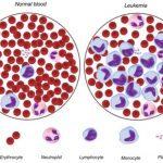 Difference Between Aplastic Anemia and Leukemia