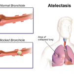 Difference Between Atelectasis and Pneumothorax