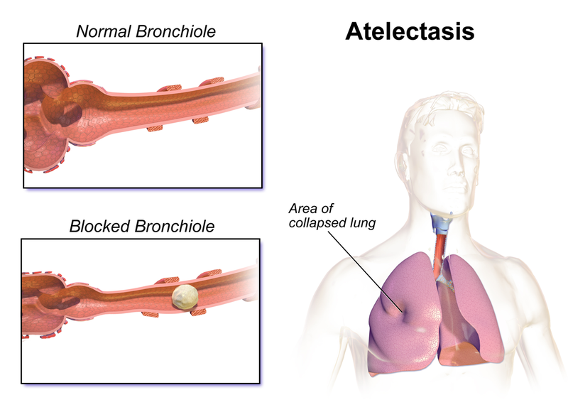 difference between atelectasis and pneumothorax | atelectasis vs, Cephalic Vein