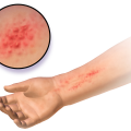 Difference Between Atopic Dermatitis and Contact Dermatitis