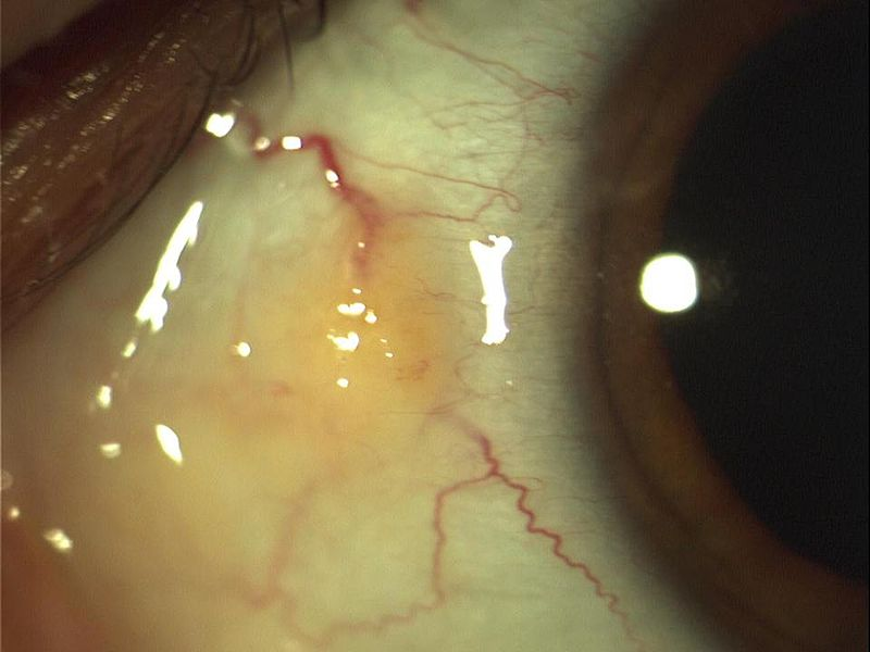 Key Difference - Pinguecula vs Pterygium