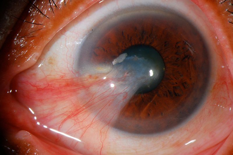 Difference Between Pinguecula and Pterygium