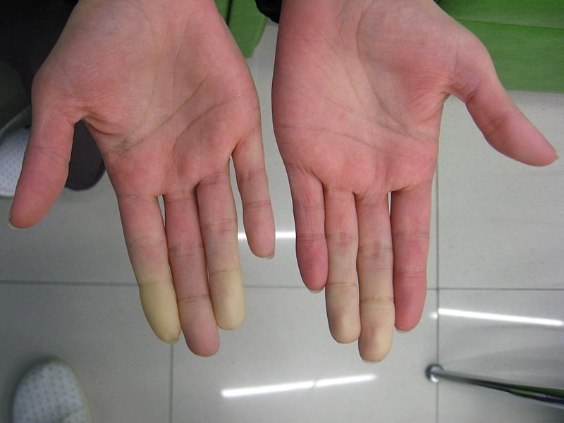 Key Difference - Raynaud's Disease vs Buerger's Disease