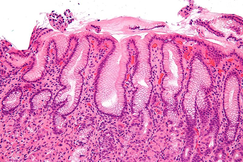 Key Difference - Gastritis vs Duodenal Ulcer