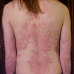 Difference Between Seborrheic Dermatitis and Psoriasis