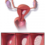 Difference Between Endometriosis and Endometrial Cancer