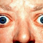 Difference Between Graves Disease and Hashimoto