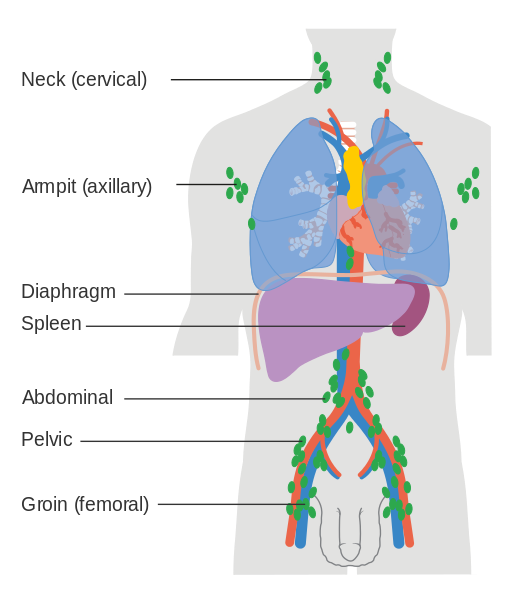Difference Between Lymphoma and Non Hodgkin's Lymphoma
