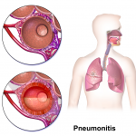 Difference Between Pneumonia and Pneumonitis
