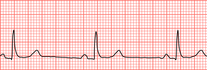 Key Difference - Tachycardia vs Bradycardia