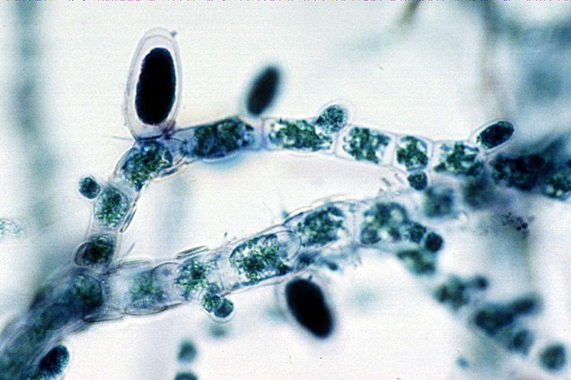Difference Between Unilocular and Plurilocular Sporangia