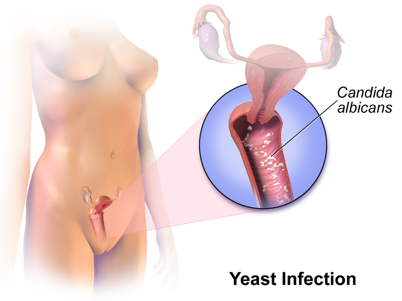 Key Difference - Yeast Infection vs Gonorrhea