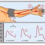 Difference Between Invasive and Noninvasive Blood Pressure