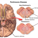 Difference Between MS and Parkinson's