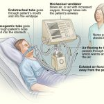 Difference Between Respirator and Ventilator