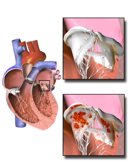 Difference Between Acute and Subacute Endocarditis