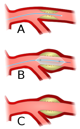 Difference Between Angioplasty and Stent