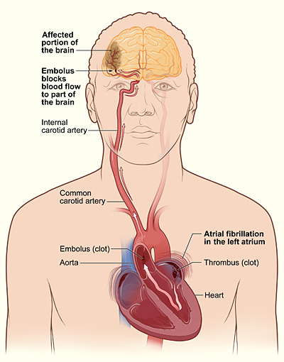 Difference Between CVA and Stroke