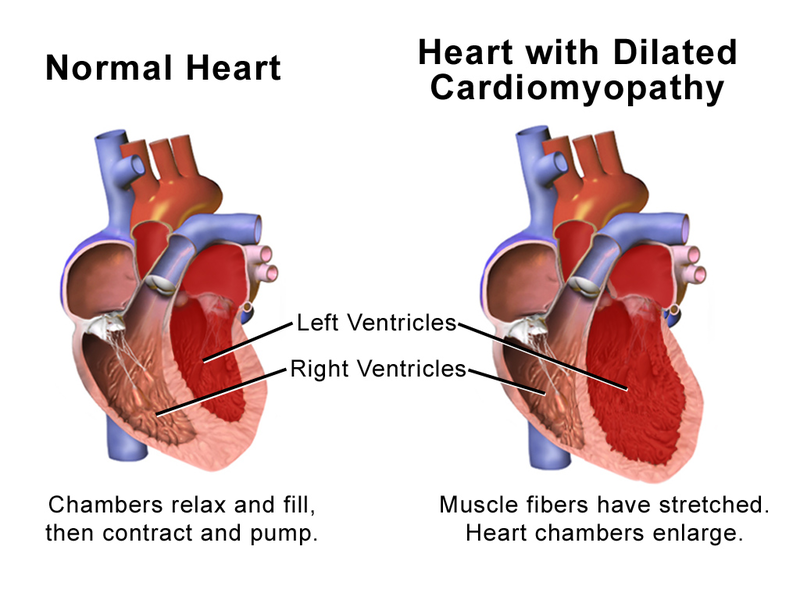 Key Difference Between Cardiomegaly and Cardiomyopathy