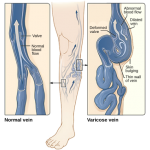 Difference Between Deep Vein Thrombosis and Varicose Veins