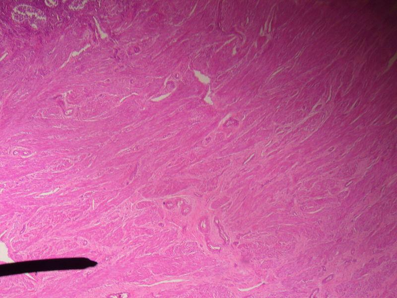 Key Difference Between Endometrium and Myometrium